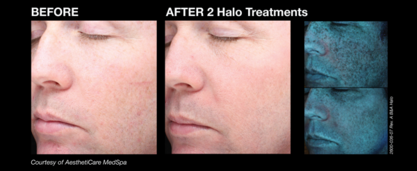 halo_before_and_afters_7_new Camarillo